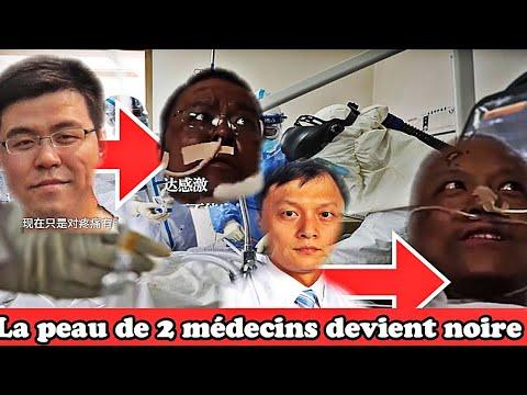 La peau de deux médecins chinois atteints du Covid-19 devient noire