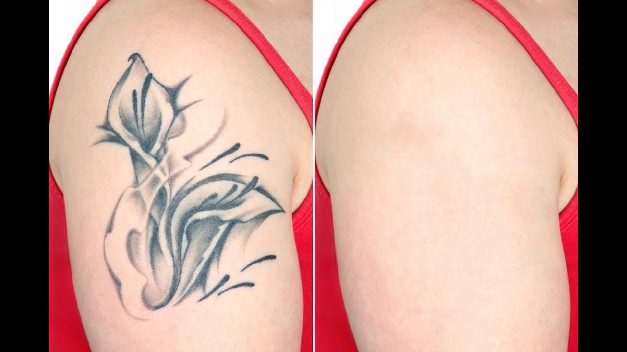 100 cascade tattoo removal 35 photos 100 tattoo for Tattoo removal az