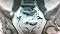 hqdefault - Refractory Low Back Pain