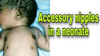 Accessory nipple