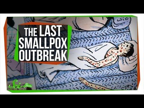 The Last Major Smallpox Outbreak in America