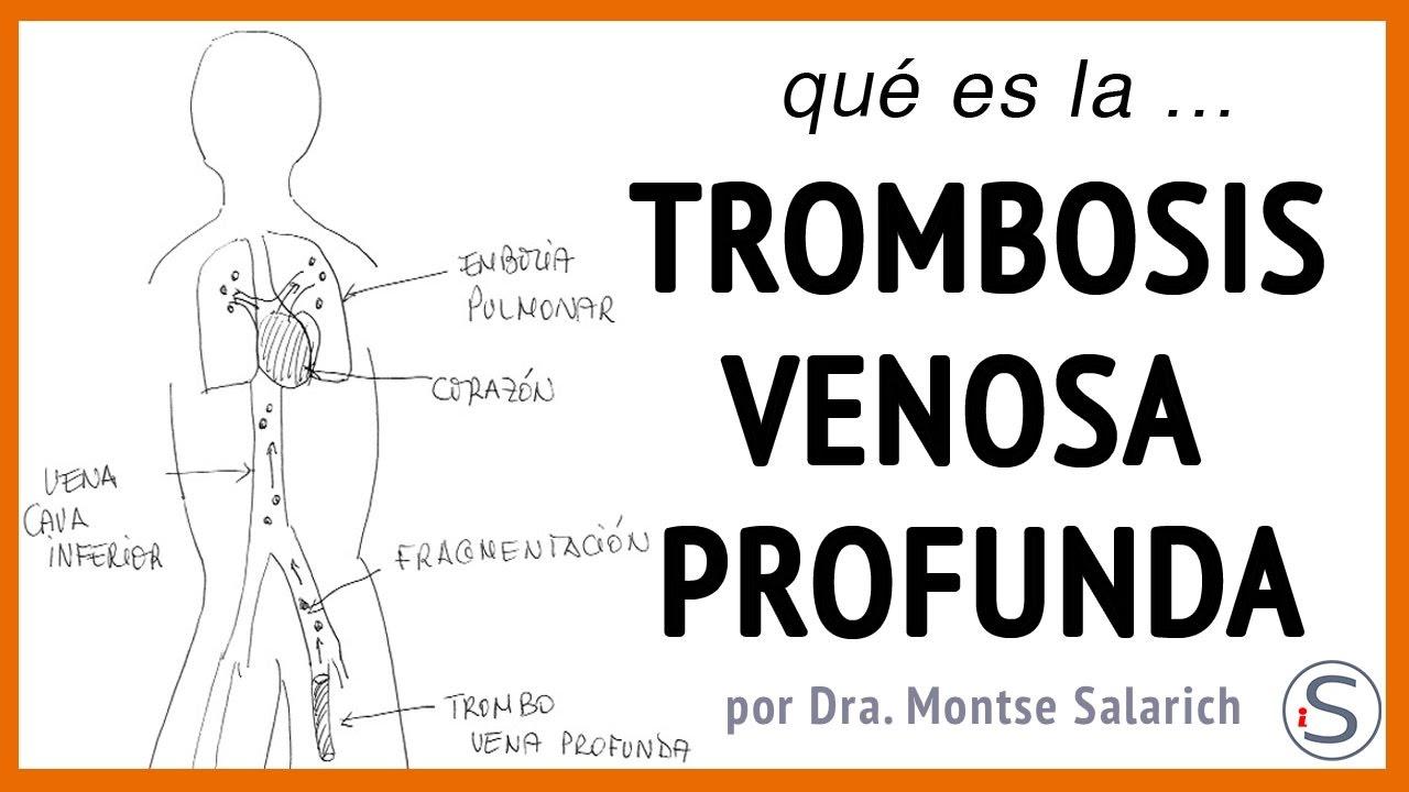 causas de la trombosis ocular