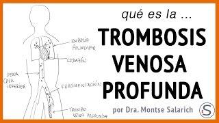 Venosa profunda venoso trombosis retorno