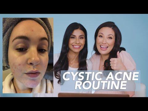 Sensitive Skin And Cystic Acne Skincare Routine For Danielle!