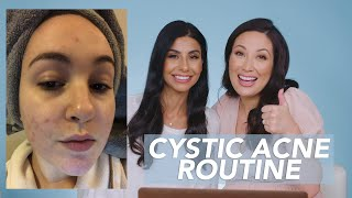 Sensitive Skin and Cystic Acne Skincare Routine for Danielle!
