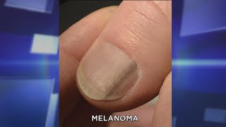 Subungual Melanoma: What You Need to Know
