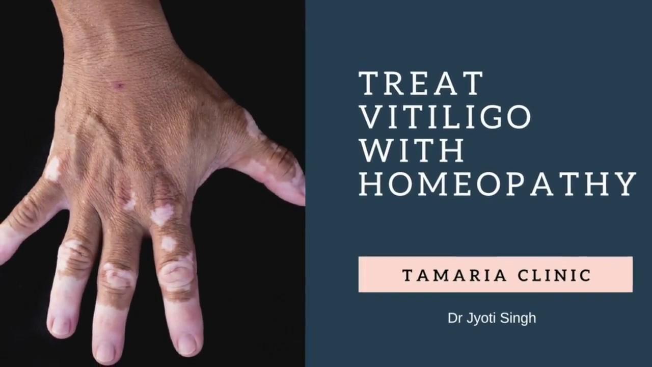 Homeopathic treatment for Vitiligo, white spots on skin