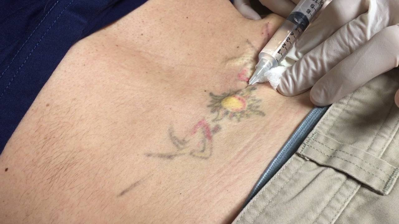 Numbing injection for laser tattoo removal youtube for Numbing for tattoo