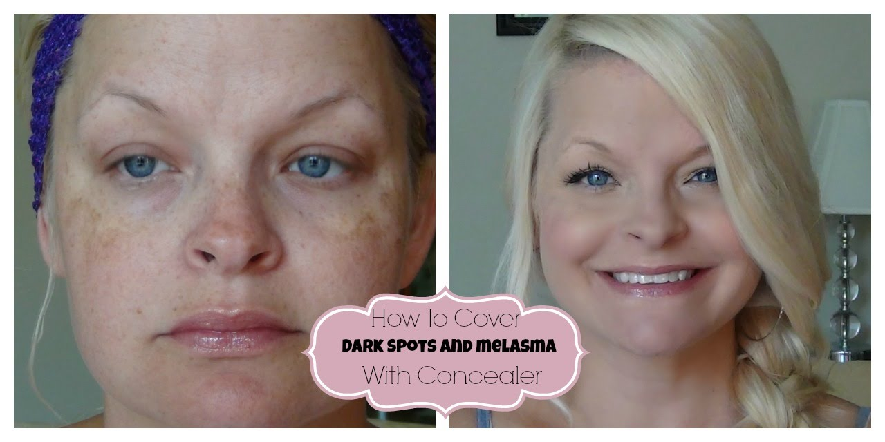 How to Cover Dark Spots / Melasma with Concealer :) - YouTube