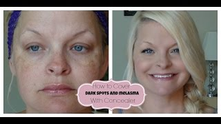 How to Cover Dark Spots / Melasma with Concealer :) Thumbnail