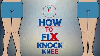HOW TO FIX PROBLEM OF KNOCK KNEE IN HINDI -PREM MISHRA