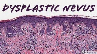 15 Congenital pigmented or melanocyticnevus Hairy Nevus Chin.