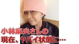 【悲報】小林麻央さんの現在、ヤバイ状態に… 小林麻央 動画 18