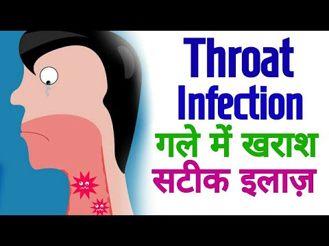 Acupressure Points For THROAT INFECTION / SORE Throat / Throat PAIN - In Hindi