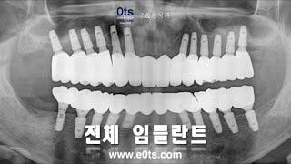 전체임플란트 상악동거상술 뼈이식 교합 여의도치과