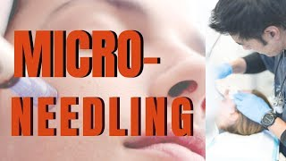 MICRO NEEDLING: What you need to know, from dermatologist | Dr Davin Lim