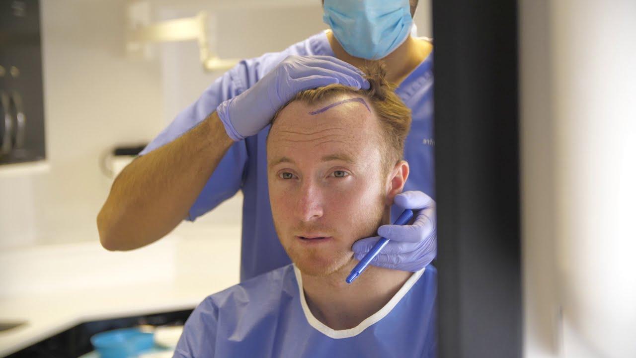 Hillside Hair Clinic: Leading Hair Loss & Restoration