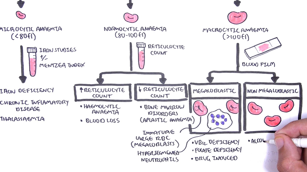 Anaemia (anemia) – classification (microcytic, normocytic and macrocytic) and pathophysiology