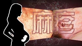 Publication Date: 2019-04-10 | Video Title: 東張西望 | 香港首宗孕婦感染麻疹 事態有幾嚴重?