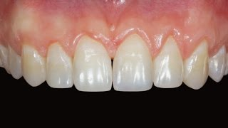 Реставрация передних зубов. Front teeth restoration(Планирование и композитная реставрация передних верхних зубов. http://dentistry.dk Врач-стоматолог Копылов Дмитр..., 2014-11-03T03:08:39.000Z)
