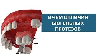 Съемные зубные протезы. Сравнение бюгельных протезов на кламмерах и аттачментах(Бюгельный протез на аттачментах отличается от бюгельного протеза на кламмерах только способом фиксации..., 2015-09-26T22:30:14.000Z)