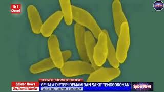 Download Video Penyakit Difteri adalah ??? sebagai berikut !!! MP3 3GP MP4
