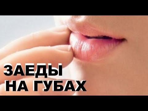 Простое средство от заед на губах у детей  взрослых
