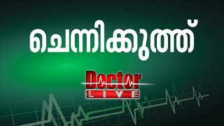 Migraine Headache Symptoms, Relief Doctor Life 01st June 2016