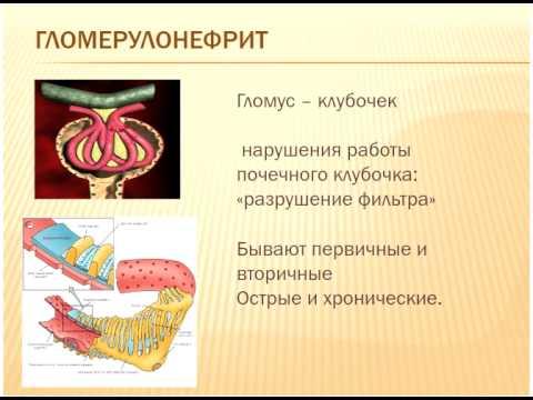 Пиелонефрит - Причины, симптомы и лечение. МЖ.