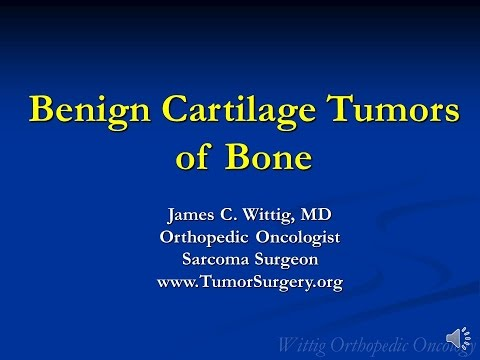 Orthopedic Oncology Course - Benign Cartilage Tumors (Osteochondroma, Chondroblastoma) - Lecture 5