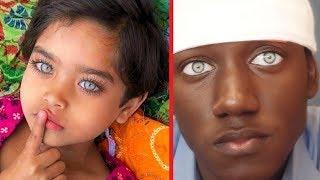 Göz Renkleriyle Tüm Dünyayı KISKANDIRAN 6 İnsan
