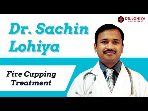 Treatment of Fire Cupping | Acupuncture | Dr. Lohiya