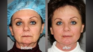 Y LIFT ® 2012 - Gina | Instant, Non Surgical Facelift