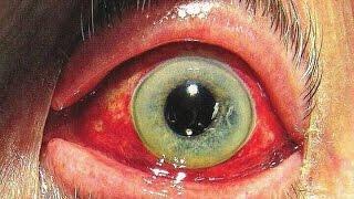 5 Enfermedades que la Ciencia NO Puede Explicar