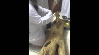الشيخ البقمي إبطال سحر عائلة في خشبة حطب