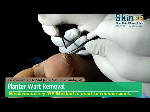 Planter Wart Removal Treatment With Electrocautery/RF Method | Jaipur