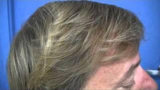 Dr Wong Hair Transplant Video - 4966 Grafts - 1 Session