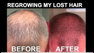 Regrowing Hair After Being Bald