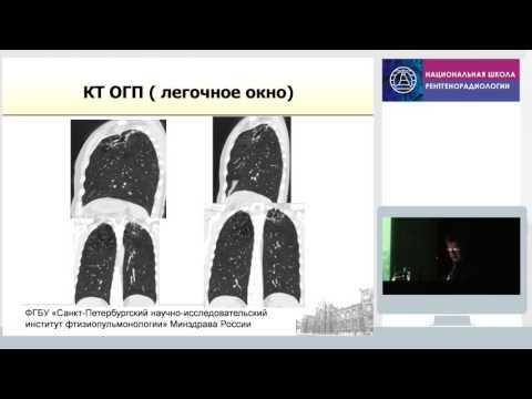 Туберкулез у взрослых - симптомы, лечение, признаки на