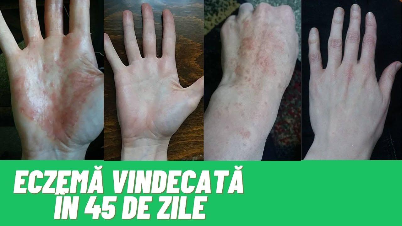 recenzii pentru tratamentul artritei degetelor
