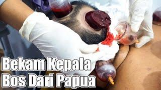 Bekam Bos Papua| Sulit Tidur Malah ketiduran saat  Bekam