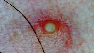 pimple on clit