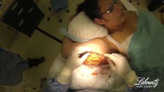 Arm Lift & Laser Smart Liposuction in Huntington Long Island NY by Dr. Lebowitz