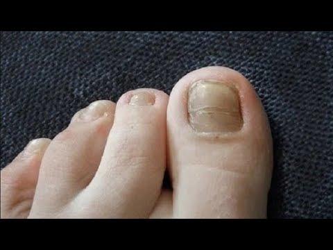 Дельные советы мастера педикюра при грибке ногтей