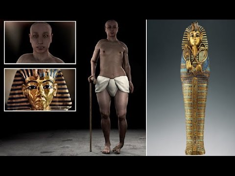 Tutankhamun had girlish hips - clubfoot and buck teeth, also his parents were brother & sister