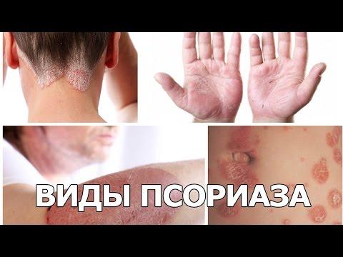ПСОРИАЗ. Лечение псориаза. Симптомы, фото псориаза