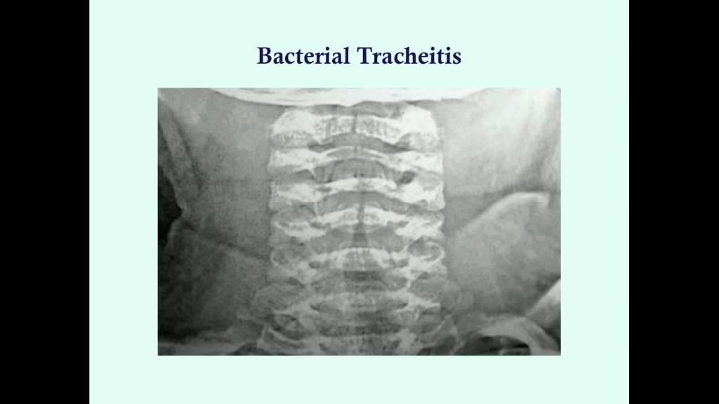 BACTERIAL TRACHEITIS DOWNLOAD