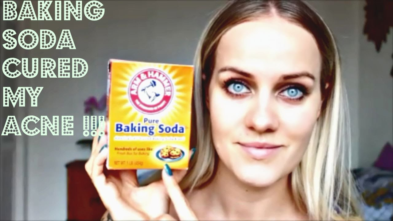 baking soda acne spot treatment overnight