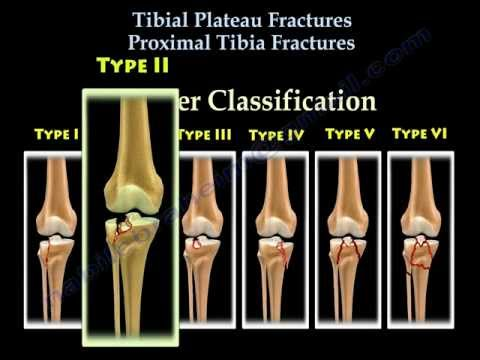 Tibial Plateau Fractures - Physiopedia