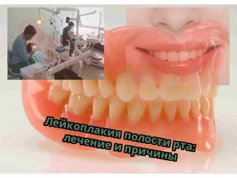 Лейкоплакия полости рта: лечение и причины